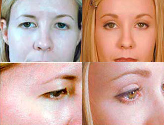 Brow Lift / Eye Lift Before & Afters | Spalding Drive